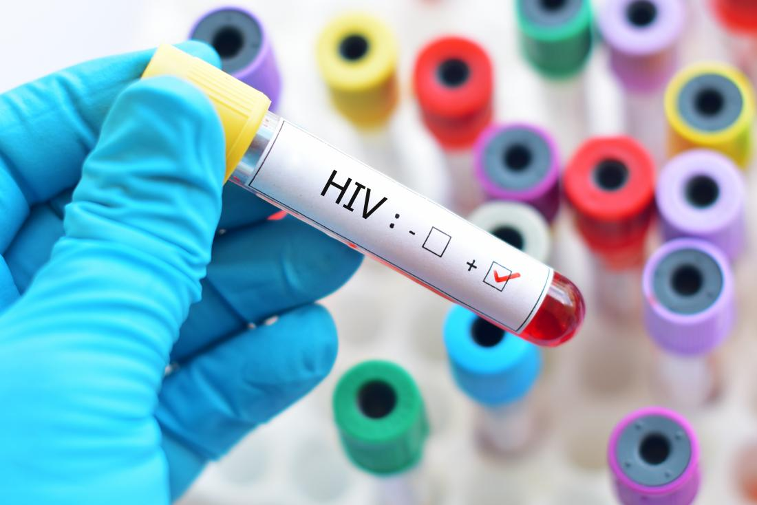 11 HIV cases diagnosed between January and May