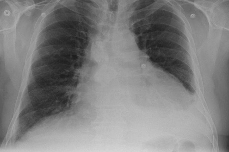 Legionnaires' disease Macau