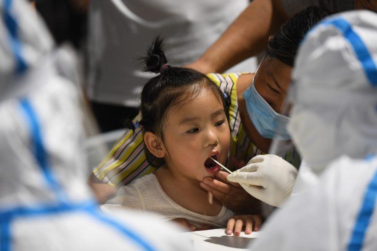 Child getting NAT